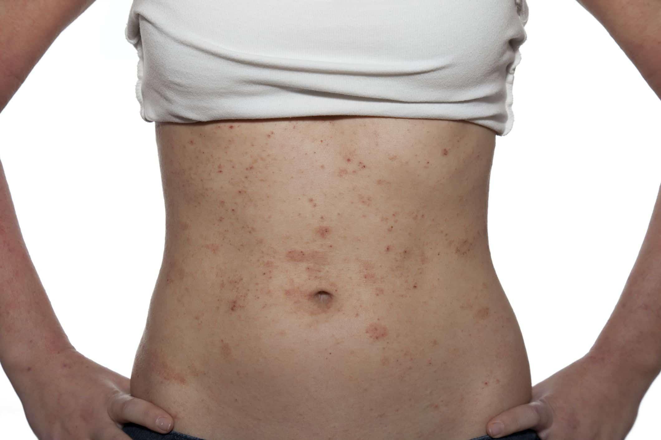 Лечение псориаза кожи (чешуйчатого лишая) у человека