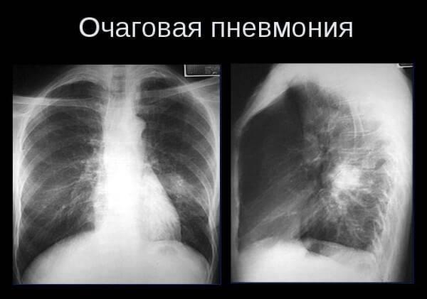 Левосторонняя и правосторонняя верхнедолевая пневмония – симптомы и лечение