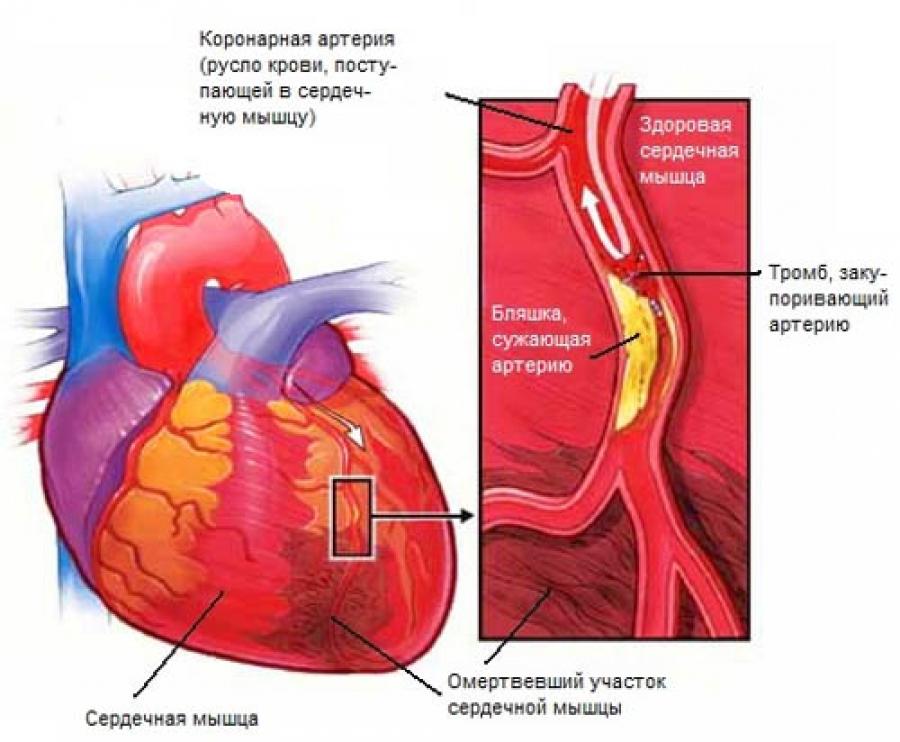 Болит сердце что делать и принимать в домашних условиях
