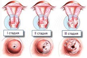 Дисплазия шейки матки. причины, симптомы, признаки, диагностика и лечение патологии. последствия, профилактика и прогноз