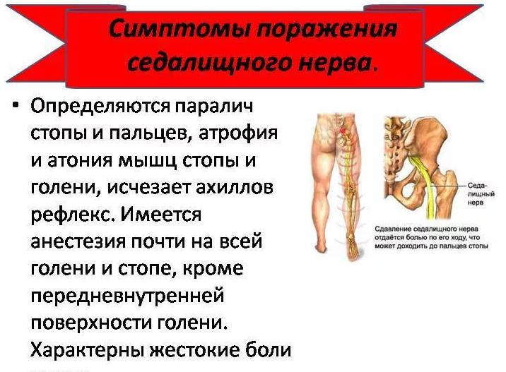 Чем лечат защемление нерва. защемление нерва, лечение в домашних условиях