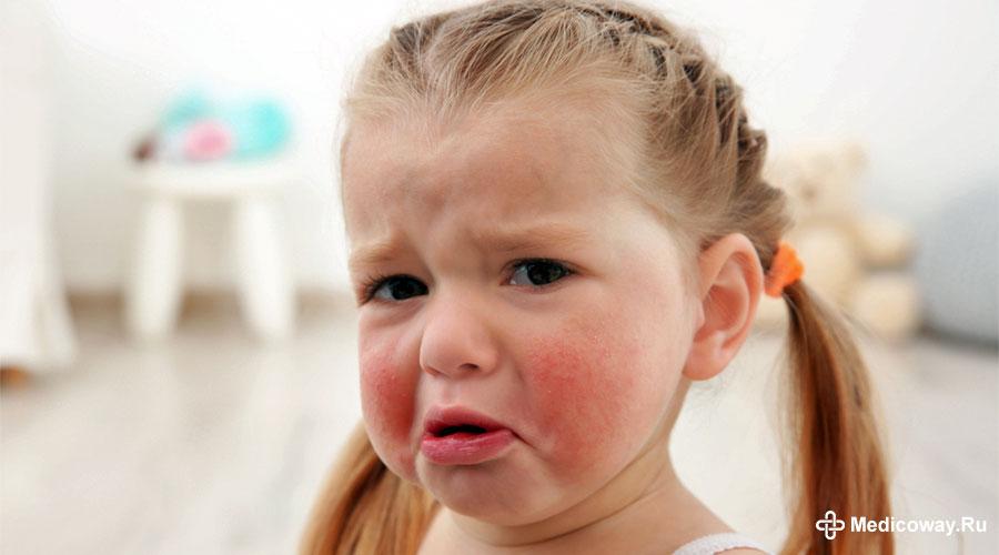Причины появления и способы лечения диатеза на щеках у ребенка