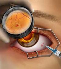 Тёмные пятна в поле зрения — признак серьёзного недуга! что такое макулодистрофия сетчатки глаза