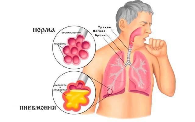 Лечение прополисом при туберкулезе легких