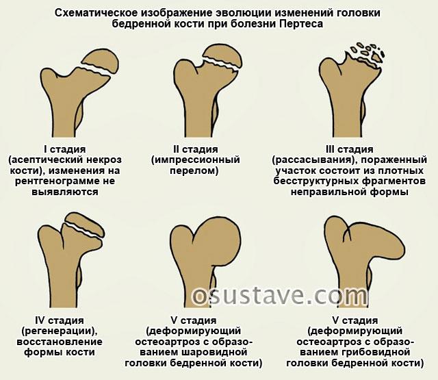 Остеохондропатии. этиология и патогенез. остеохондропатия головки бедренной кости (болезнь легга-кальве-пертеса) – диагностика, принципы лечения.