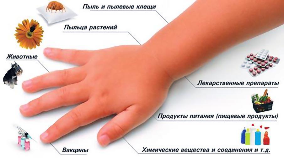 Что делать при внезапно возникшей аллергии у взрослого или ребёнка?