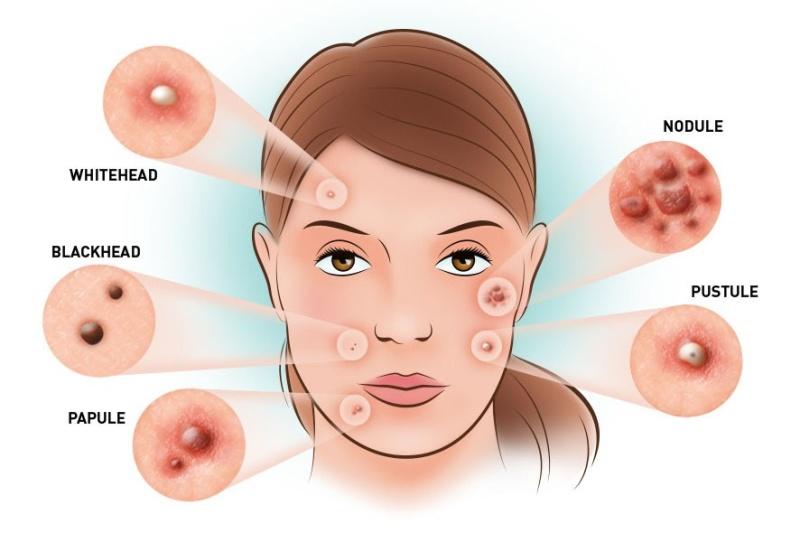 Черные угри (точки) - от чего появляются, как избавиться на лице и спине, способы лечения
