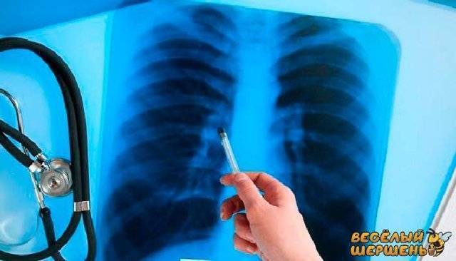 Лечение туберкулеза народными средствами (самые эффективные)