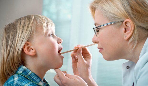 Скарлатина у детей – симптомы, лечение, профилактика, признаки
