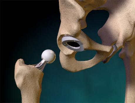 Можно ли вставать на колени после эндопротезирования коленного и тазобедренного сустава