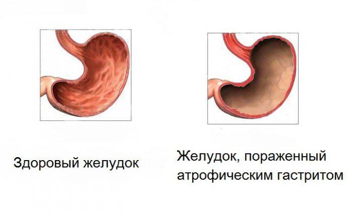 Эхинококкоз – симптомы у человека, которые должны насторожить