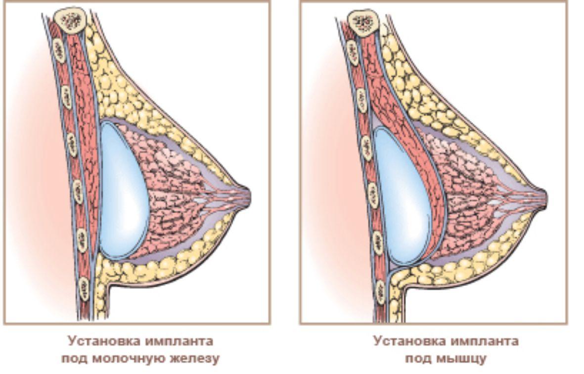 Виды маммопластики, порядок проведения операций, результаты, противопоказания