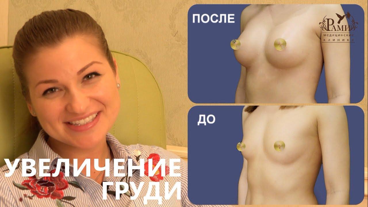 Маммопластика – пластика грудных желез. фото до и после, стоимость, отзывы