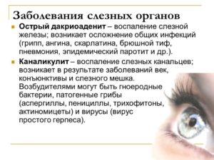 Дакриоаденит (воспаление слезных желез)