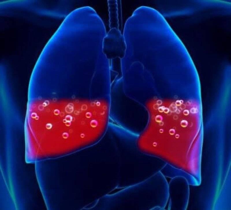 Синдром кровохарканья - причины, диагностика, методы лечения