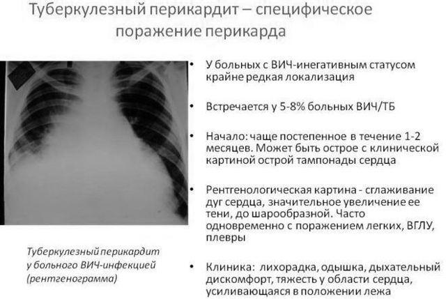 Перикардиальный выпот: причины, признаки, физиология, лечение | кардио болезни