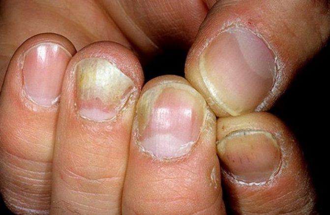 Грибок ногтей на руках начальная стадия лечение