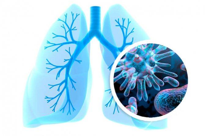 Насколько заразна пневмония для окружающих детей? как уберечь ребенка?