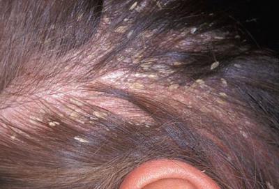 Грибок кожи головы, микоз волосистой части головы