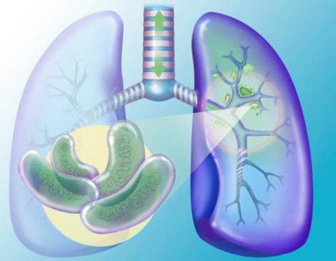 Открытая форма туберкулеза