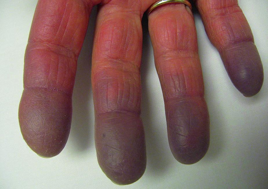 Синдром рейно. причины, симптомы и признаки, диагностика и лечение болезни