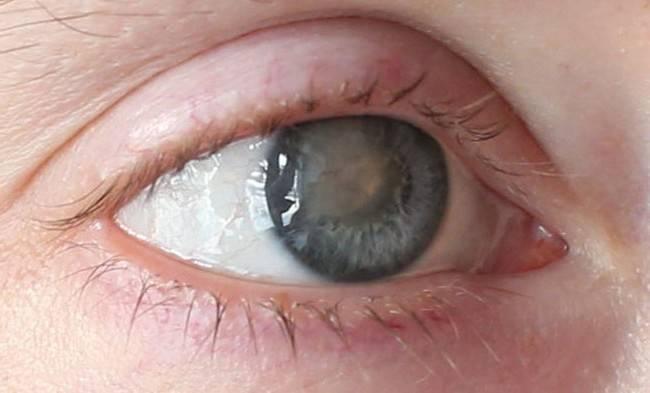 Кератит: симптомы и лечение, глаза, акантамебный, грибковый