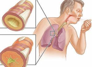 Симптомы и лечение аллергического насморка у взрослых