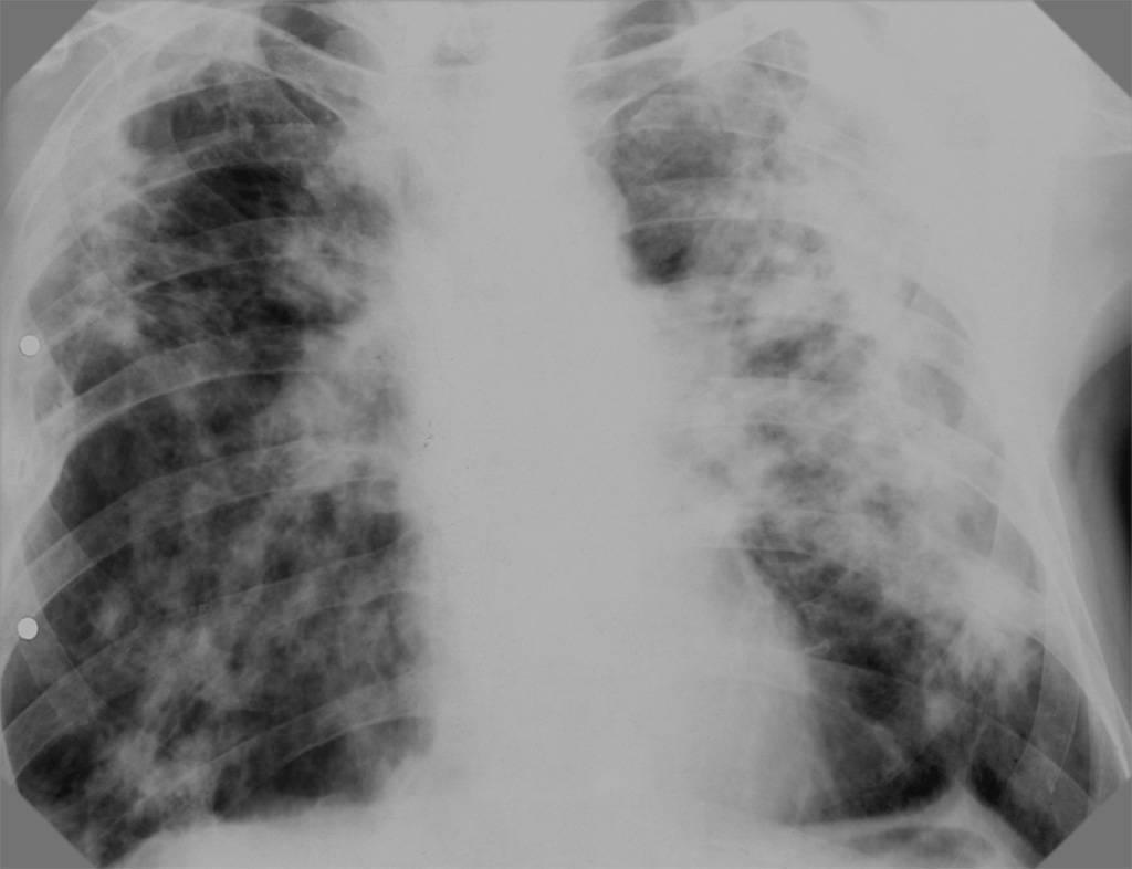 Как отличить пневмонию от туберкулеза легких