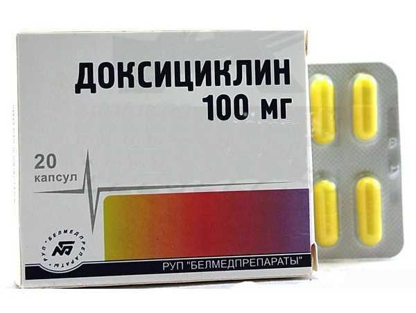 Хронический левосторонний аднексит (сальпингоофорит)