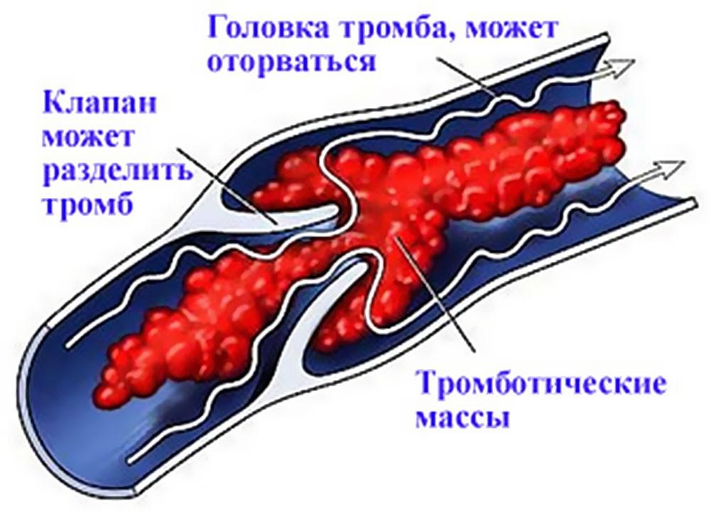 Как узнать есть ли тромбы в сосуда, от чего они образуются?