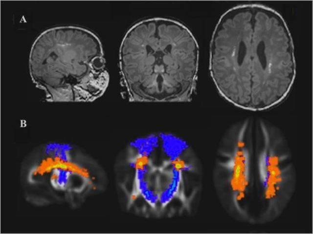 Глиоз головного мозга: симптомы, лечение и прогноз на выздоровление