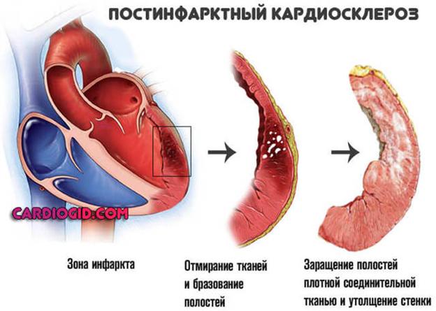 Постинфарктный кардиосклероз — причины, симптомы, диагностика и лечение — симптомы