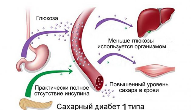 Сахарный диабет 1 типа. когда он бывает?