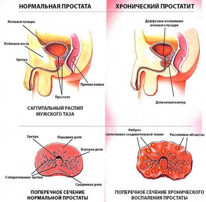 Простатит — мужская болезнь с не мужскими симптомами