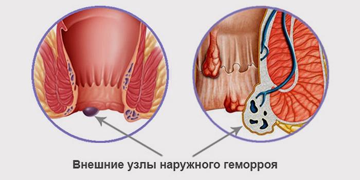 Наружный геморрой: симптомы, причины и лечение