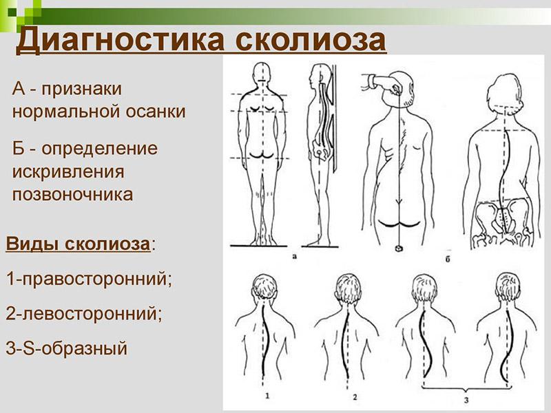 Упражнении лечебной гимнастики и лфк при смещении позвонков поясничного отдела