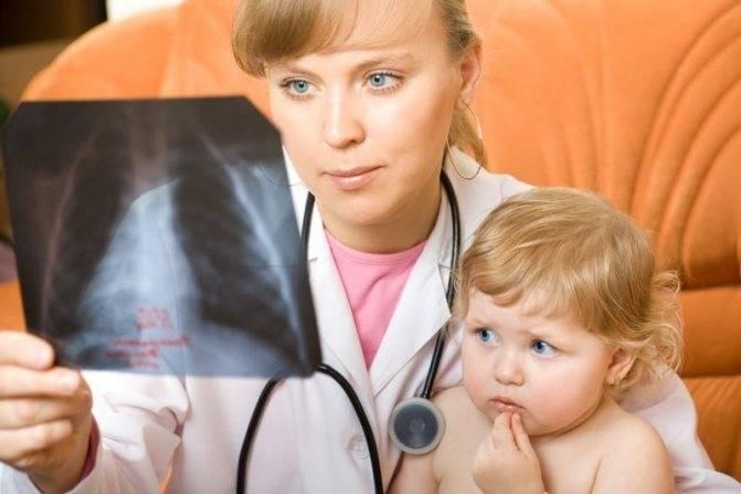 Симптомы пневмонии у грудничка до 1 года – признаки воспаления легких