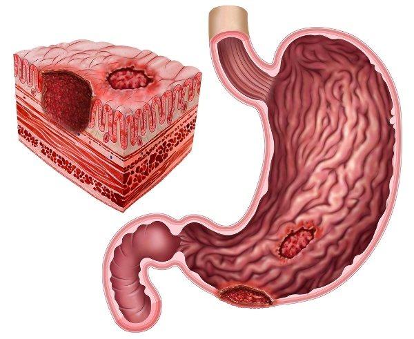 Диета при язве желудка: разница в питании при обострении и ремиссии