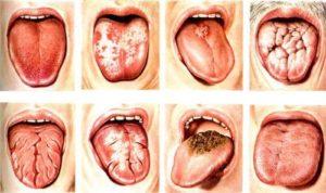 Кандидоз у мужчин и женщин: признаки, симптомы, лечение. как лечить кандидоз