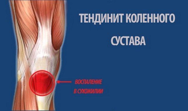 Тендинит - причины, симптомы, диагностика, лечение