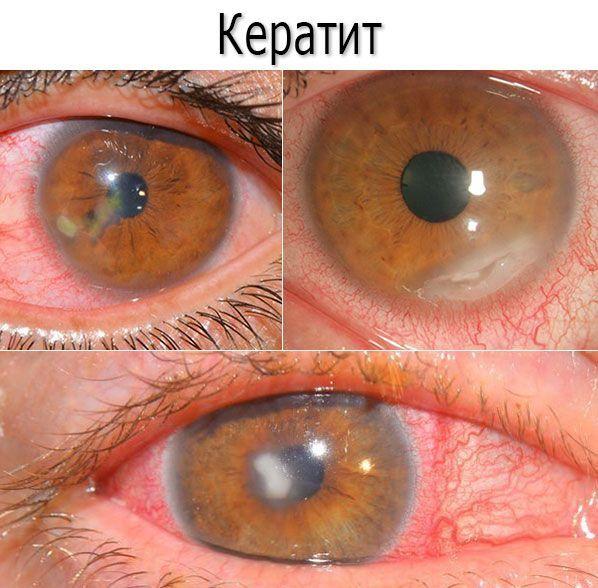 Виды и классификация кератитов с фото: грибковый, поверхностный, краевой, герпетический, нитчатый, язвенный кератит и др.