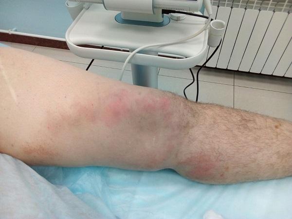 Чем опасен тромбоз поверхностных вен нижних конечностей?