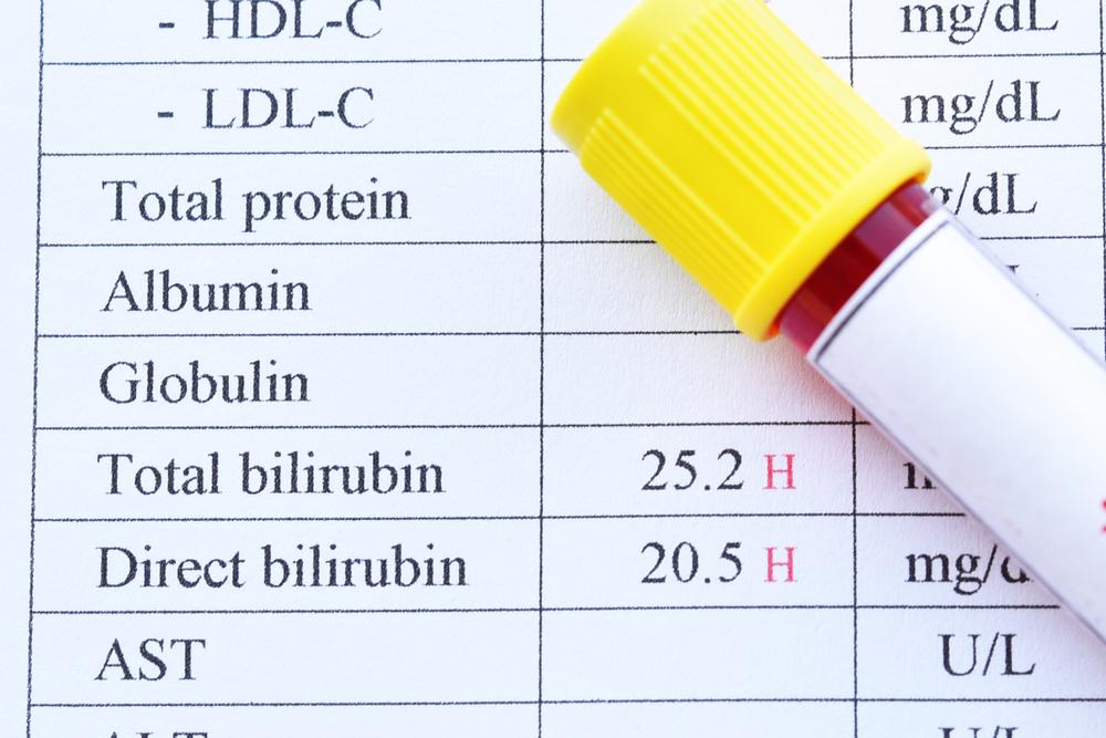 Медикаментозные и домашние методы снизить билирубин взрослому