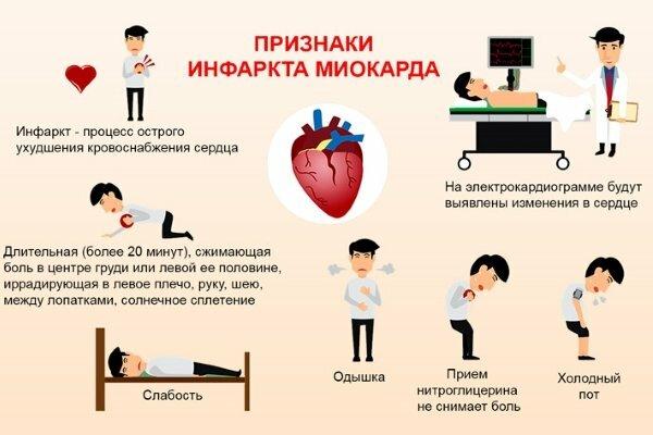Симптомы и признаки сердечного приступа у мужчин и женщин: как распознать и помочь