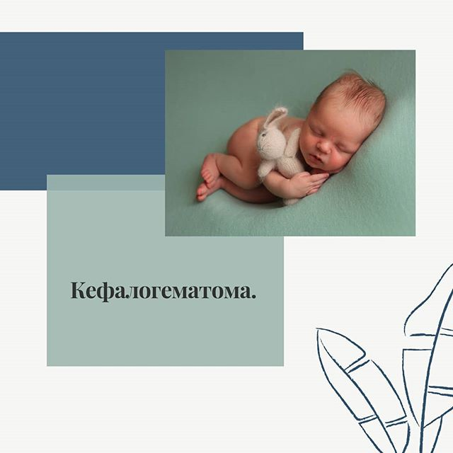Кефалогематома у новорожденных – причины, лечение, последствия