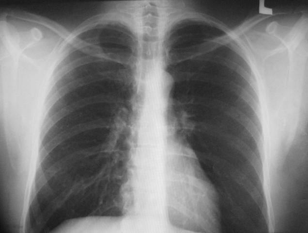 Когда можно забеременеть после туберкулеза легких