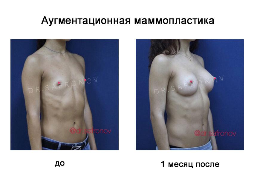 Увеличение молочных желез и коррекция их формы при помощи имплантатов