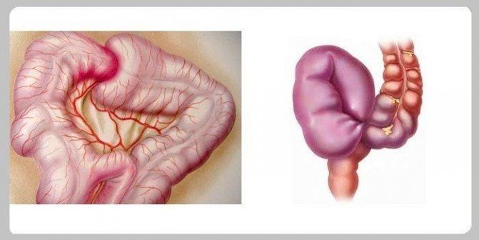 Заворот кишок. симптомы, лечение, операция и причины заворота кишок у детей и взрослых.