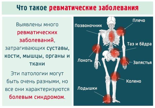 Диета и питание при болях в суставах и позвоночнике