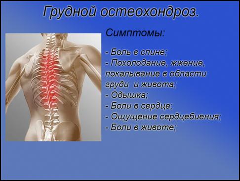Боль в груди после пневмонии